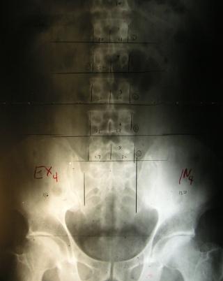 Marked Pelvic AP X-Ray