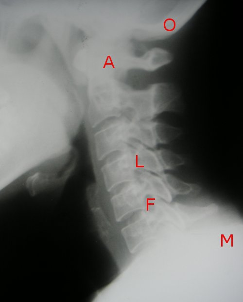 LMFAO - Cervical Spine X-Ray