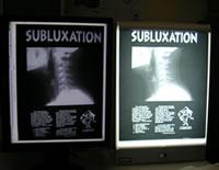 subluxation